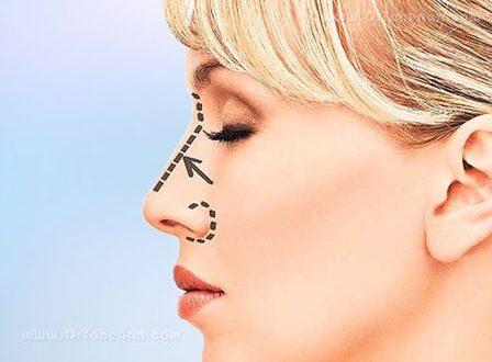 متخصص جراحی بینی در مشهد