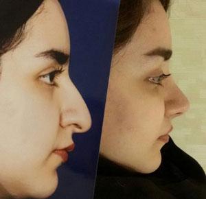 نمونه کار دکتر سید حسن حسینی خواه جراح بینی در مشهد 1