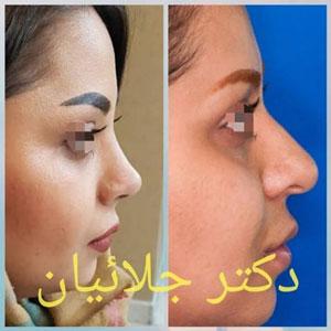 نمونه کار دکتر کریم جلائیان ( جلالیان ) جراح بینی در مشهد 4