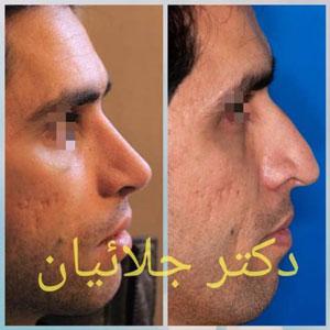 نمونه کار دکتر کریم جلائیان ( جلالیان ) جراح بینی در مشهد 2
