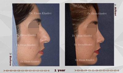 نمونه کار دکتر احسان خدیوی جراح بینی در مشهد 4