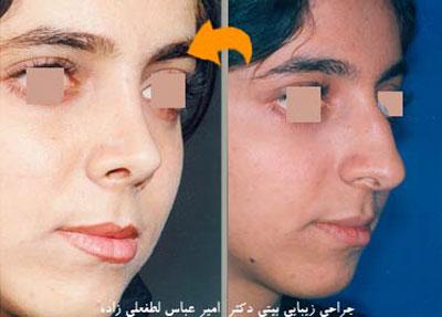 نمونه کار دکتر امیر عباس لطفعلی زاده جراح بینی در مشهد 1