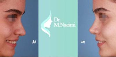 نمونه کار دکتر محمد نعیمی جراح بینی در مشهد 2