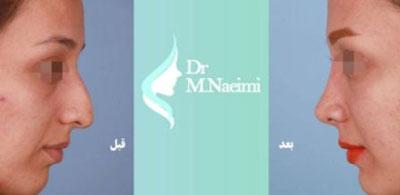 نمونه کار دکتر محمد نعیمی جراح بینی در مشهد 1