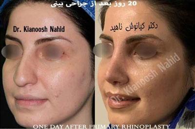 نمونه کار دکتر کیانوش ناهید جراح بینی در مشهد 1