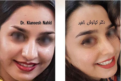 نمونه کار دکتر کیانوش ناهید جراح بینی در مشهد 2
