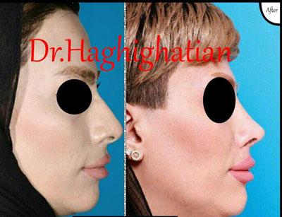 dr-haghighatian-(4)