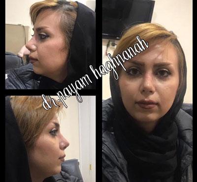 dr-haghpanah-(5)