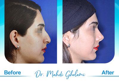 dr-mahdi-gholami-rhinoplasty3