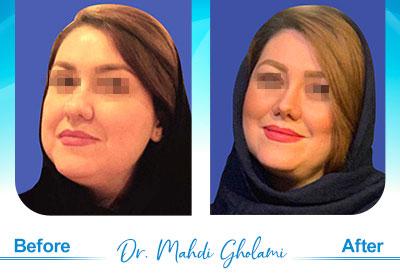 dr-mahdi-gholami-rhinoplasty4