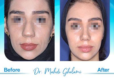 dr-mahdi-gholami-rhinoplasty6