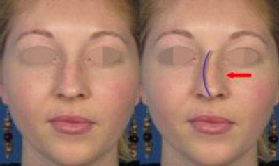 عمل زیبایی بینی با بیمه تکمیلی