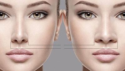 جراحی بینی رایگان