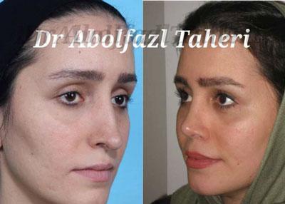 دکتر ابوالفضل طاهری جراح بینی تهران 2