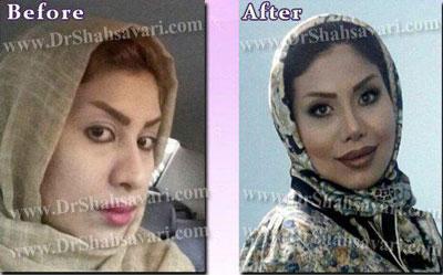 دکتر ابراهیم شهسواری جراح بینی در تهران 5