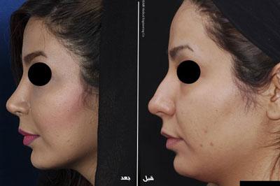 دکتر بهزاد فرخی جراح زیبایی پلاستیک در تهران 2