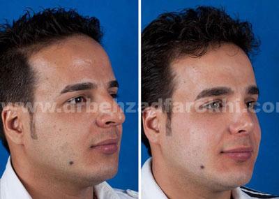 دکتر بهزاد فرخی جراح زیبایی پلاستیک در تهران 4