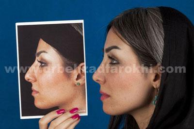 دکتر بهزاد فرخی جراح زیبایی پلاستیک در تهران 5