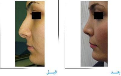 دکتر غلامرضا صفایی جراح زیبایی بینی در تهران 2