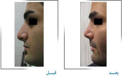 دکتر غلامرضا صفایی جراح زیبایی بینی در تهران 3