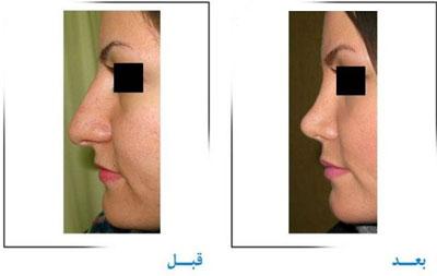 دکتر غلامرضا صفایی جراح زیبایی بینی در تهران 4