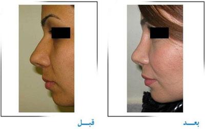 دکتر غلامرضا صفایی جراح زیبایی بینی در تهران 5