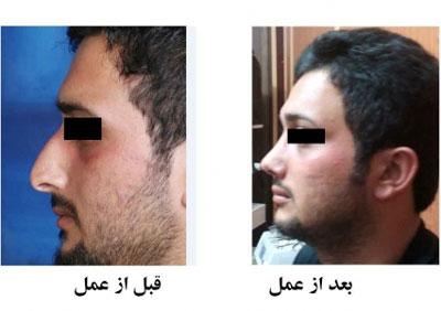 دکتر هادی سرمست جراح پلاستیک بینی در تهران 2