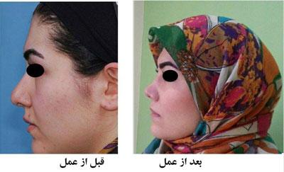 دکتر هادی سرمست جراح پلاستیک بینی در تهران 4