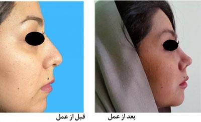دکتر هادی سرمست جراح پلاستیک بینی در تهران 5