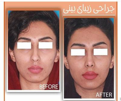 دکتر حقیقتیان جراح بینی در شیراز 11
