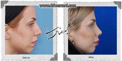 دکتر حمیدرضا حسنانی جراح بینی تهران 3