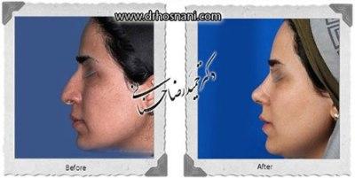 دکتر حمیدرضا حسنانی جراح بینی تهران 4