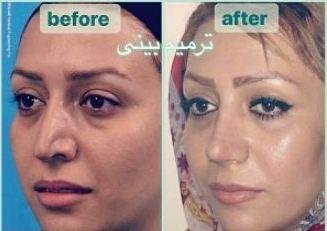 دکتر کمال هادی جراح بینی در تهران 2