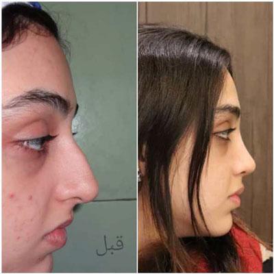 دکتر بهرام مقدم فرد جراح بینی در تهران 2