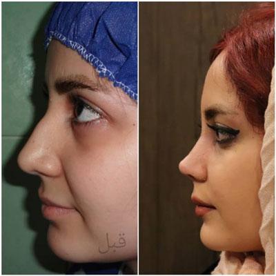 دکتر بهرام مقدم فرد جراح بینی در تهران 3