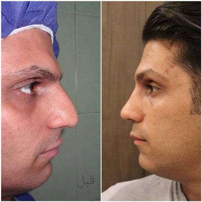 دکتر بهرام مقدم فرد جراح بینی در تهران 4