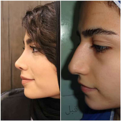 دکتر بهرام مقدم فرد جراح بینی در تهران 5