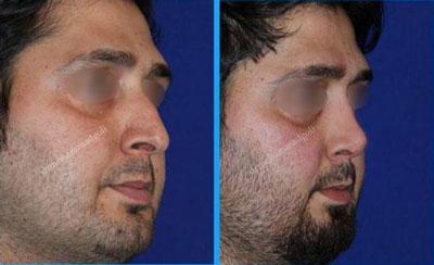 دکتر محمد گلی جراح بینی در تهران 5