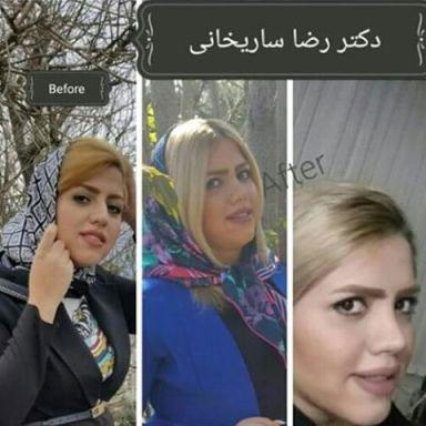 دکتر رضا ساریخانی جراح بینی در تهران 1