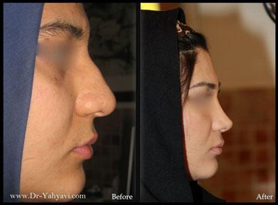 دکتر شهریار یحیوی جراح بینی در تهران 2