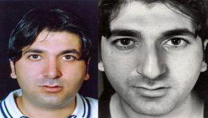 دکتر محمدرضا یوشی جراح بینی در تهران 1