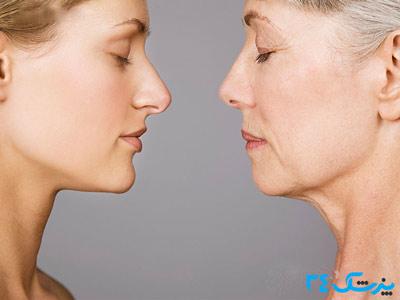 مناسب ترین سن برای عمل بینی