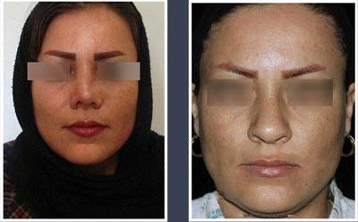 نمونه کار جراحی بینی دکتر حسامی3