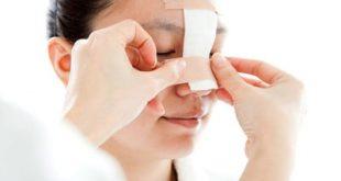 مراقبت بعد از عمل بینی