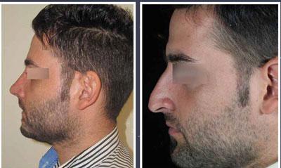 نمونه کار جراحی بینی دکتر حسامی4