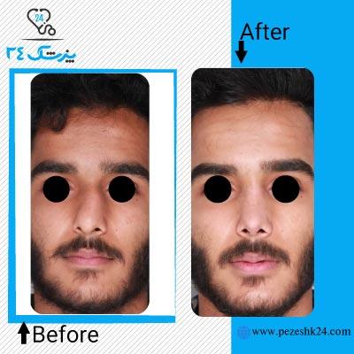 نمونه جراحی بینی دکتر حقیقتیان 5