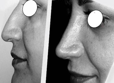 نمونه کار جراحی بینی دکتر خسروشاهی1