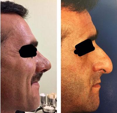 بهترین جراح بینی در تبریز