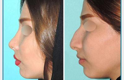 نمونه کار جراحی بینی دکتر نظری1