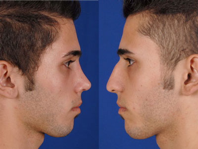 نمونه کار جراحی بینی دکتر رضایی2